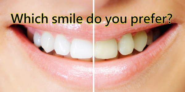 Teeth Whitening Products , Reviews and Costs 1