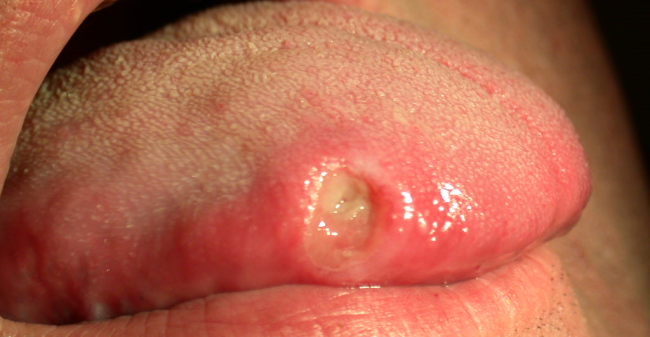 What Caused Mouth Ulcer 1